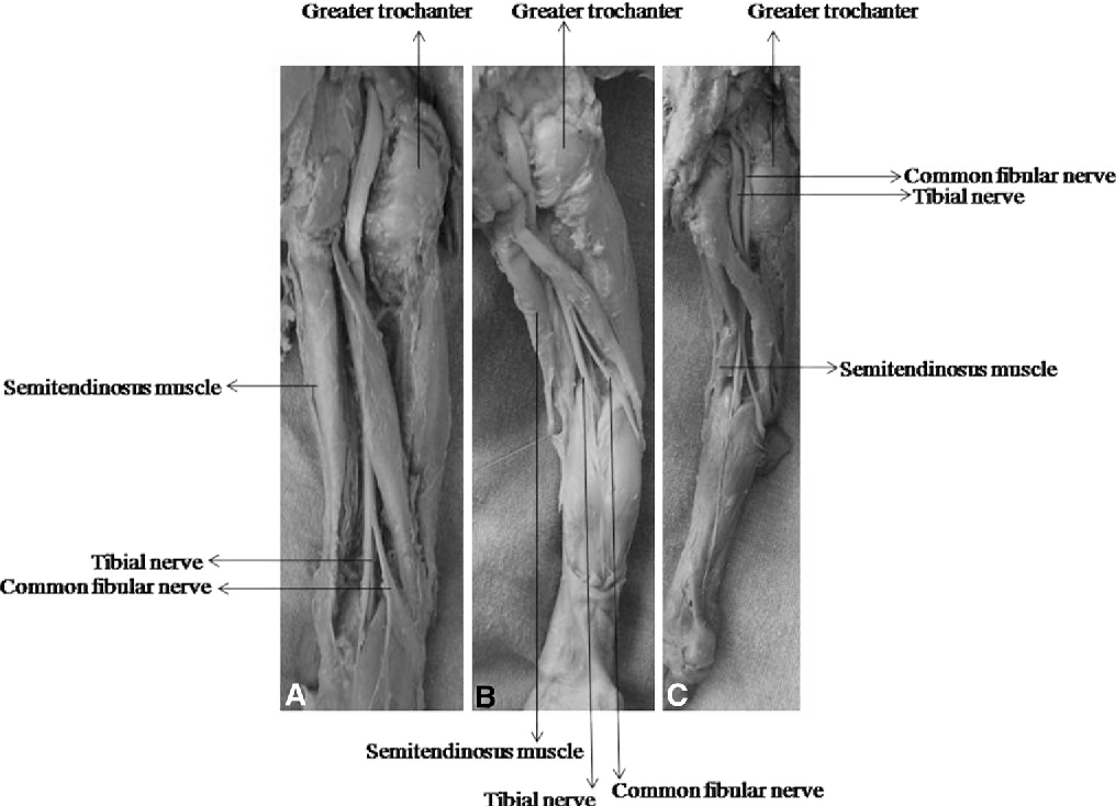 Anatomical relation between sciatic nerve and piriformis muscle and ...