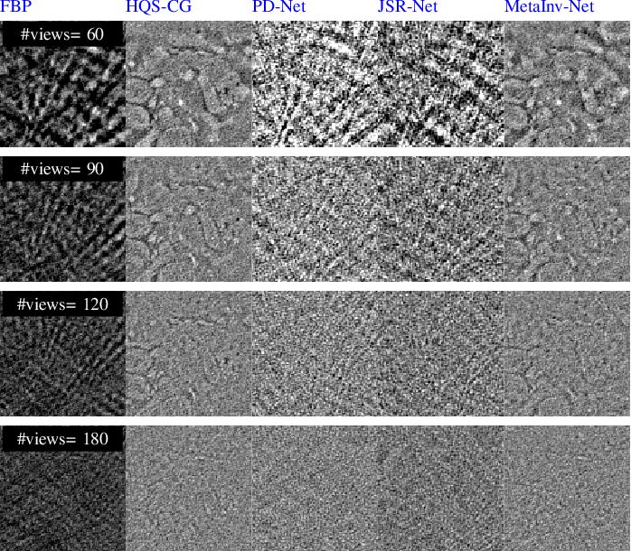 Figure 2 for MetaInv-Net: Meta Inversion Network for Sparse View CT Image Reconstruction