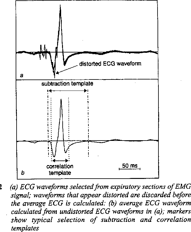 Description and validation of a technique for the removal of ecg figure 2 ccuart Gallery