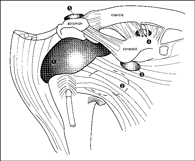 Imaging Of Bursae Around The Shoulder Joint Semantic Scholar