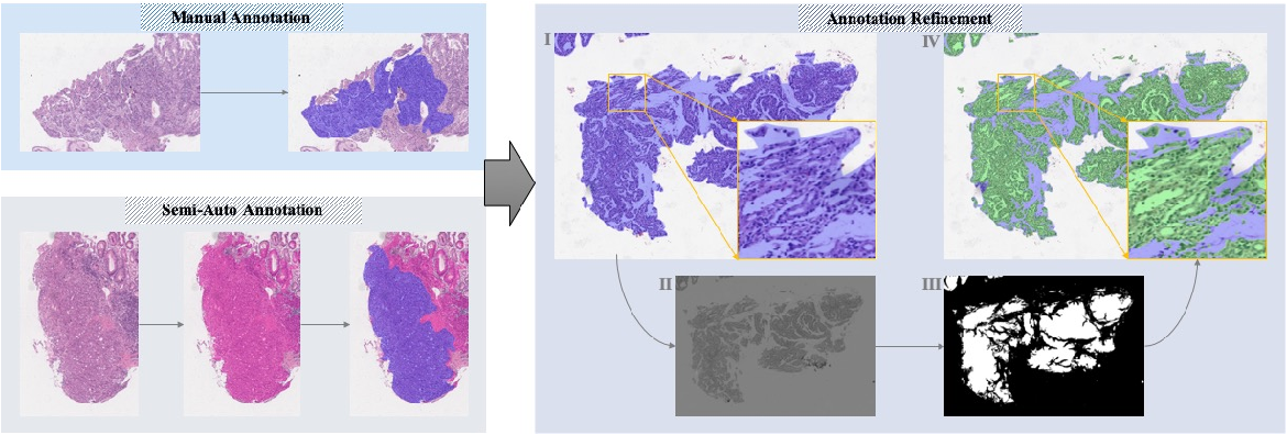 Figure 3 for Large-scale Gastric Cancer Screening and Localization Using Multi-task Deep Neural Network