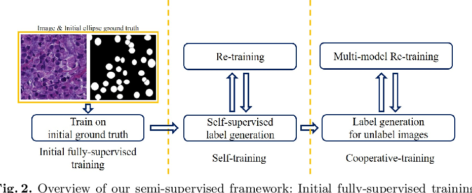 Figure 3 for Signet Ring Cell Detection With a Semi-supervised Learning Framework