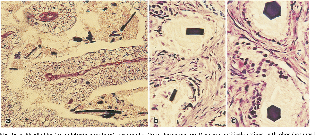 Fig. 2a--c. Needle-like (a), indefinite minute (a), rectangular (b) or hexagonal (c) ICr were positively stained with phosphotungstic acid haematoxylin in contrast with negative surrounding material, x 240
