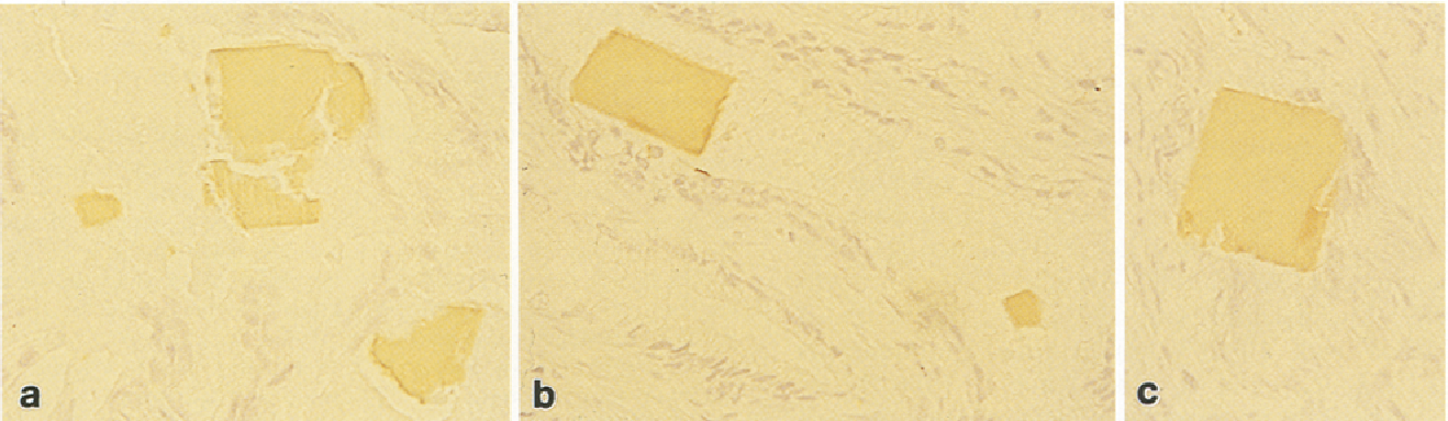 Fig. 3a-c. Antibody to epithelial membrane antigen was positive for irregular lumpy (a) or rectangular (b) ICr, even in the crushed part of prostatic carcinoma (c). ABC method, x 240