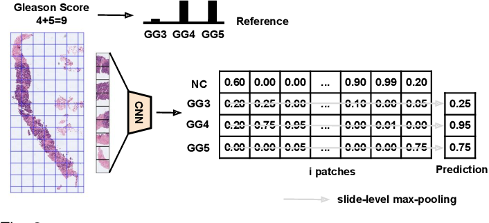 Figure 3 for Self-learning for weakly supervised Gleason grading of local patterns