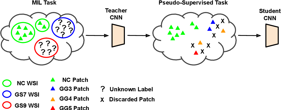 Figure 2 for Self-learning for weakly supervised Gleason grading of local patterns
