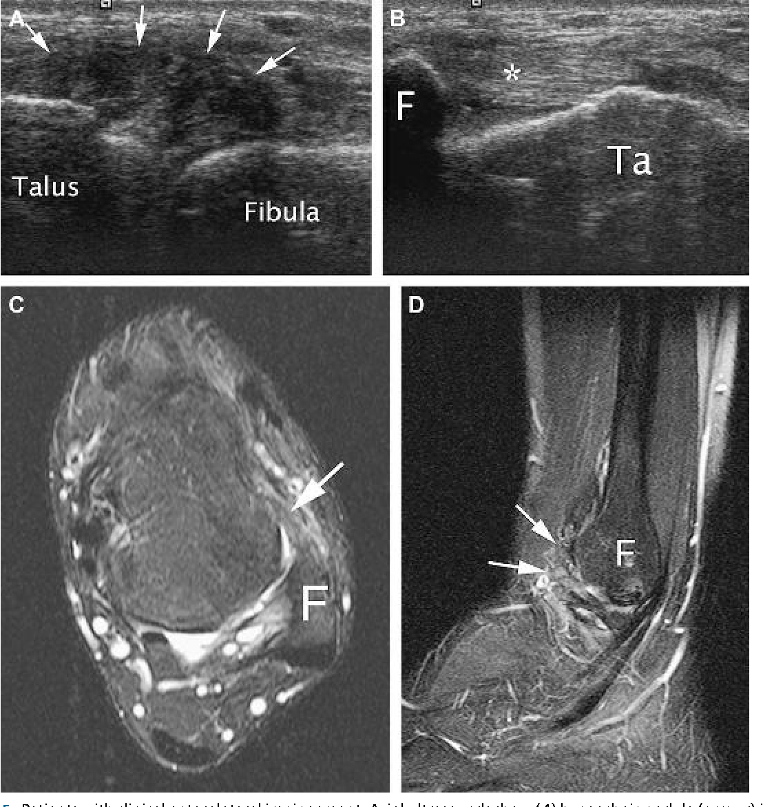 Figure 5 from Ankle impingement syndromes. - Semantic Scholar
