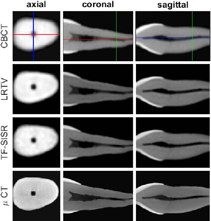 Figure 4 for A Tensor Factorization Method for 3D Super-Resolution with Application to Dental CT
