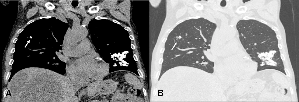 """Figure 2 from Uremic lung: The """"calcified cauliflower"""" sign"""