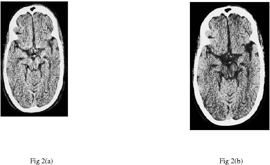 Figure 1 for A comparative study between proposed Hyper Kurtosis based Modified Duo-Histogram Equalization (HKMDHE) and Contrast Limited Adaptive Histogram Equalization (CLAHE) for Contrast Enhancement Purpose of Low Contrast Human Brain CT scan images