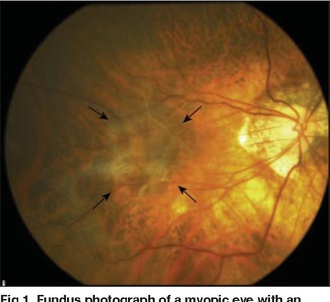 Fundus Photograph Of A Myopic Eye With An Idiopathic Epiretinal Membrane Arrows
