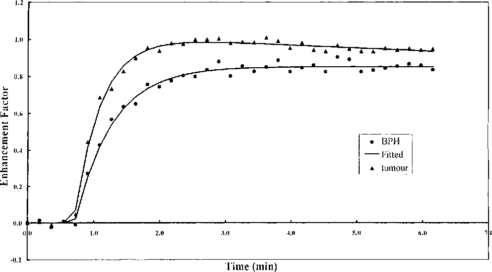 Figure 1. Typical time-signal intensity curves obtained from the FMPSPGR sequence for histologically confirmed regions of tumor and fibroglandular BPH. The enhancement factor curves generated from the FMPSPGR data for tumor and BPH demonstrate good fit with the line fitted to the data by the twocompartment pharmacokinetic model. The goodness of fit for this data is highly significant (P , 0.001).
