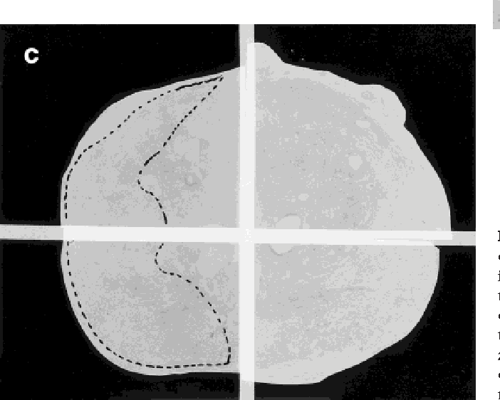 Figure 2. a: T2-weighted FSE (TR/TE 3400/160 msec) image obtained with the endorectal coil, showing diffuse low signal intensity throughout both peripheral zones, which merges with the central gland. The site of tumor is not identified. b: The corresponding parametric image demonstrating increase in the contrast exchange rate throughout the right peripheral zone. c: Hematoxylin and eosin-stained section, obtained at a corresponding level, confirms the presence of tumor in the right peripheral zone (dotted line).