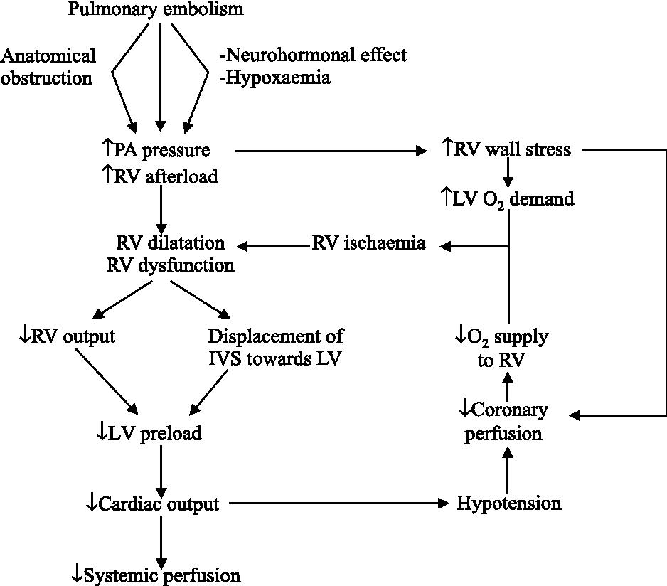 Pulmonary Embolism Pathophysiology Diagnosis Treatment