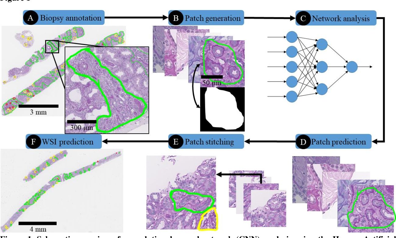 Figure 2 for Neural Network Segmentation of Interstitial Fibrosis, Tubular Atrophy, and Glomerulosclerosis in Renal Biopsies