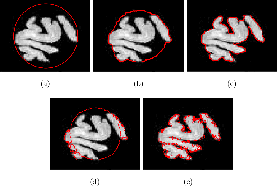 Figure 3 for Using the Split Bregman Algorithm to Solve the Self-Repelling Snake Model