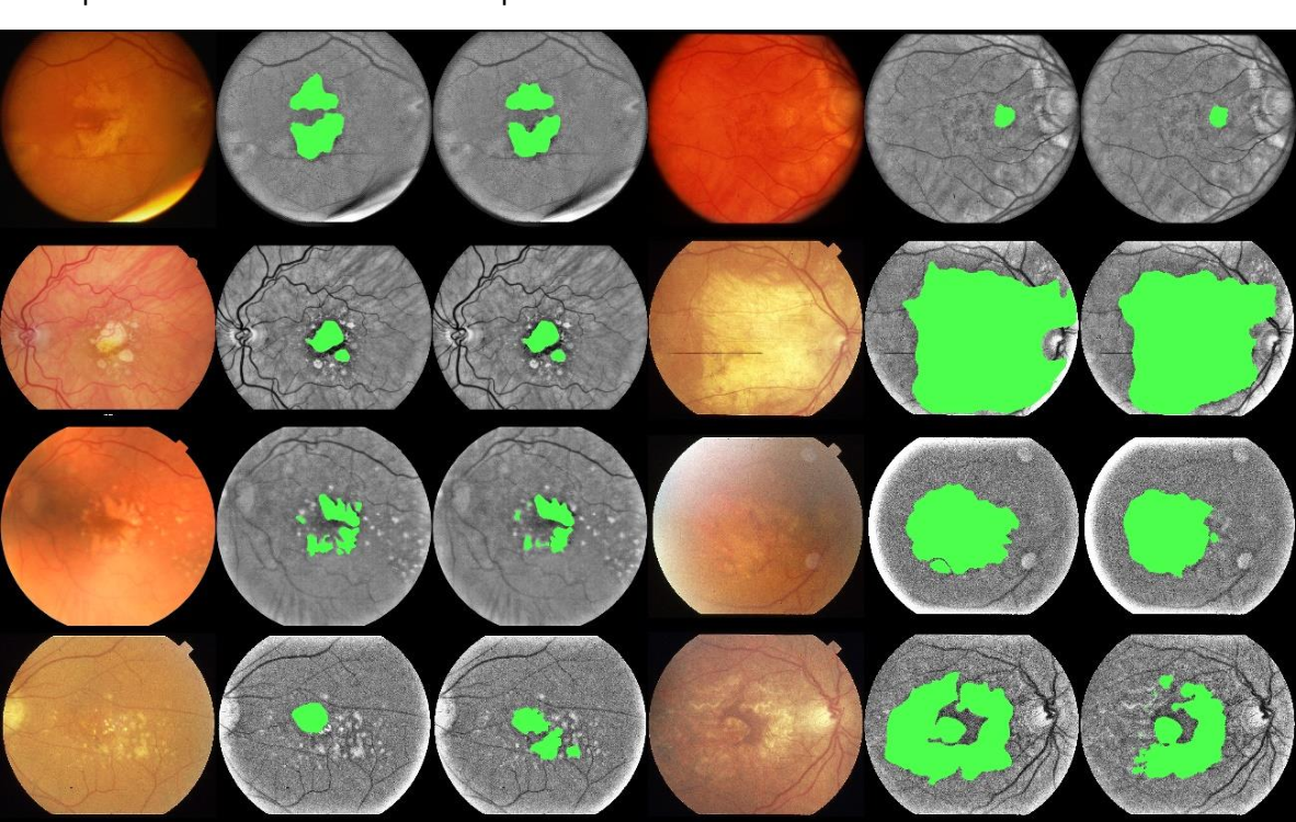 Figure 4 for A deep learning model for segmentation of geographic atrophy to study its long-term natural history