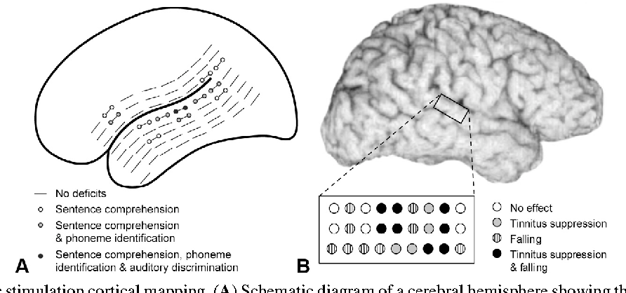 Figure 132 from invasive recordings in the human auditory cortex figure 1310 ccuart