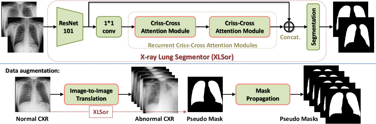 Figure 1 for XLSor: A Robust and Accurate Lung Segmentor on Chest X-Rays Using Criss-Cross Attention and Customized Radiorealistic Abnormalities Generation