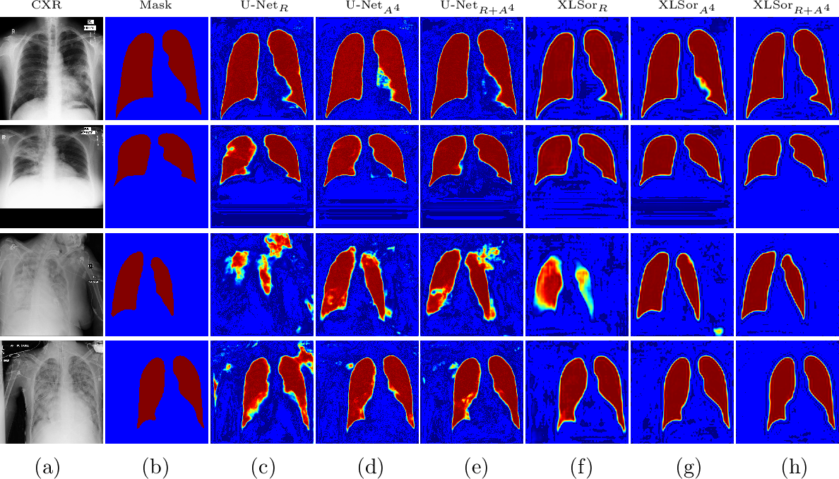 Figure 4 for XLSor: A Robust and Accurate Lung Segmentor on Chest X-Rays Using Criss-Cross Attention and Customized Radiorealistic Abnormalities Generation
