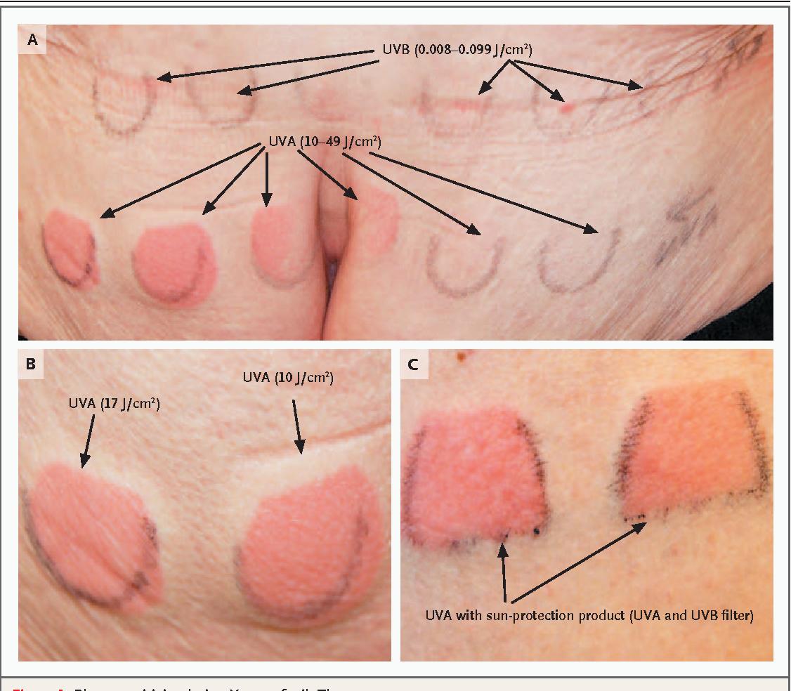 Figure 1. Photosensitivity during Vemurafenib Therapy.