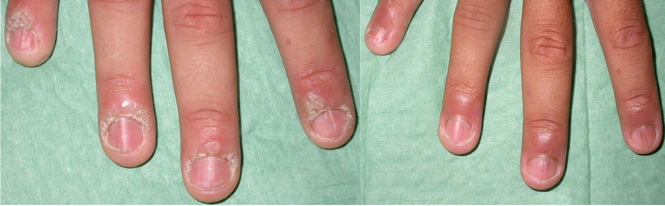 Figure 1 from Intralesional cidofovir for the treatment of