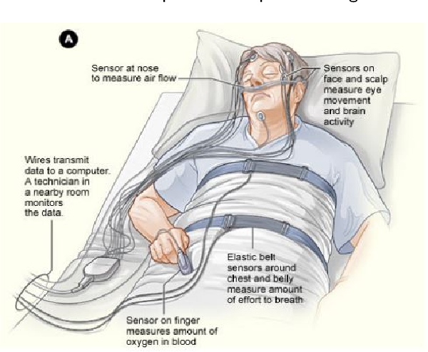 Figure 3 for A Review of the Non-Invasive Techniques for Monitoring Different Aspects of Sleep