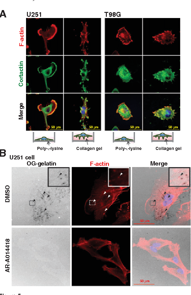 Figure 5. Effect of GSK3b inhibitionon extracellularmatrix degradation by invadopodia formation. A, fluorescence and immunofluorescence microscopic findings of glioblastoma cells cultured for 12 hours on poly-L-lysine–coated (left 3 panels) or collagen gel-coated (right 3 panels) cover slips and stained for F-actin (red), cortactin (green), and cell nuclei (blue). B, U251 cells seeded on OG-gelatin (white)–coated glass-bottom culture dishes were treated with DMSO or AR-A014418 for 12 hours. The cells were fluorescence-stained for F-actin and nuclei (Hoechst 33342) and observed under confocal laserscanningmicroscopy. Themagnified image from the areawithin the square is shown in the right corner of eachupper panel. Arrowheads, cellular structures responsible for degradation of OG-gelatin and accumulation of F-actin, corresponding to invadopodia.