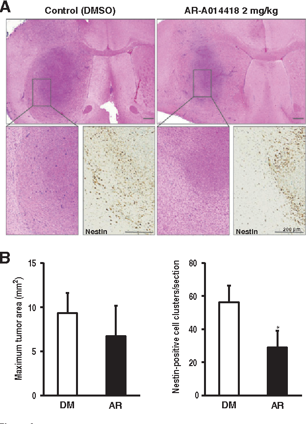 Figure 6. Effects of GSK3b inhibition on the glioblastoma animal model. A, representative histologic and immunohistochemical sections of brain tumors treated with DMSO or AR-A014418. After 2 weeks of treatment, the tumor bulk was smaller in mice treated with AR-A014418 compared with those treated with DMSO. Tumor cells (positive for nestin) invaded adjacent normal brain tissue in control mice, whereasmice treatedwith AR-A014418 showed a well-demarcated border between the tumor and normal brain tissue. Scale bars, 200 mm. B, effects of DMSO (DM) and AR-A014418 (AR) on the maximum tumor area (mm2) and the number of nestin-positive cell clusters. , P < 0.05.