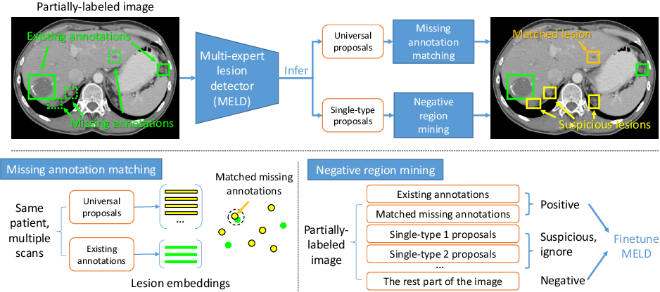 Figure 1 for Universal Lesion Detection by Learning from Multiple Heterogeneously Labeled Datasets