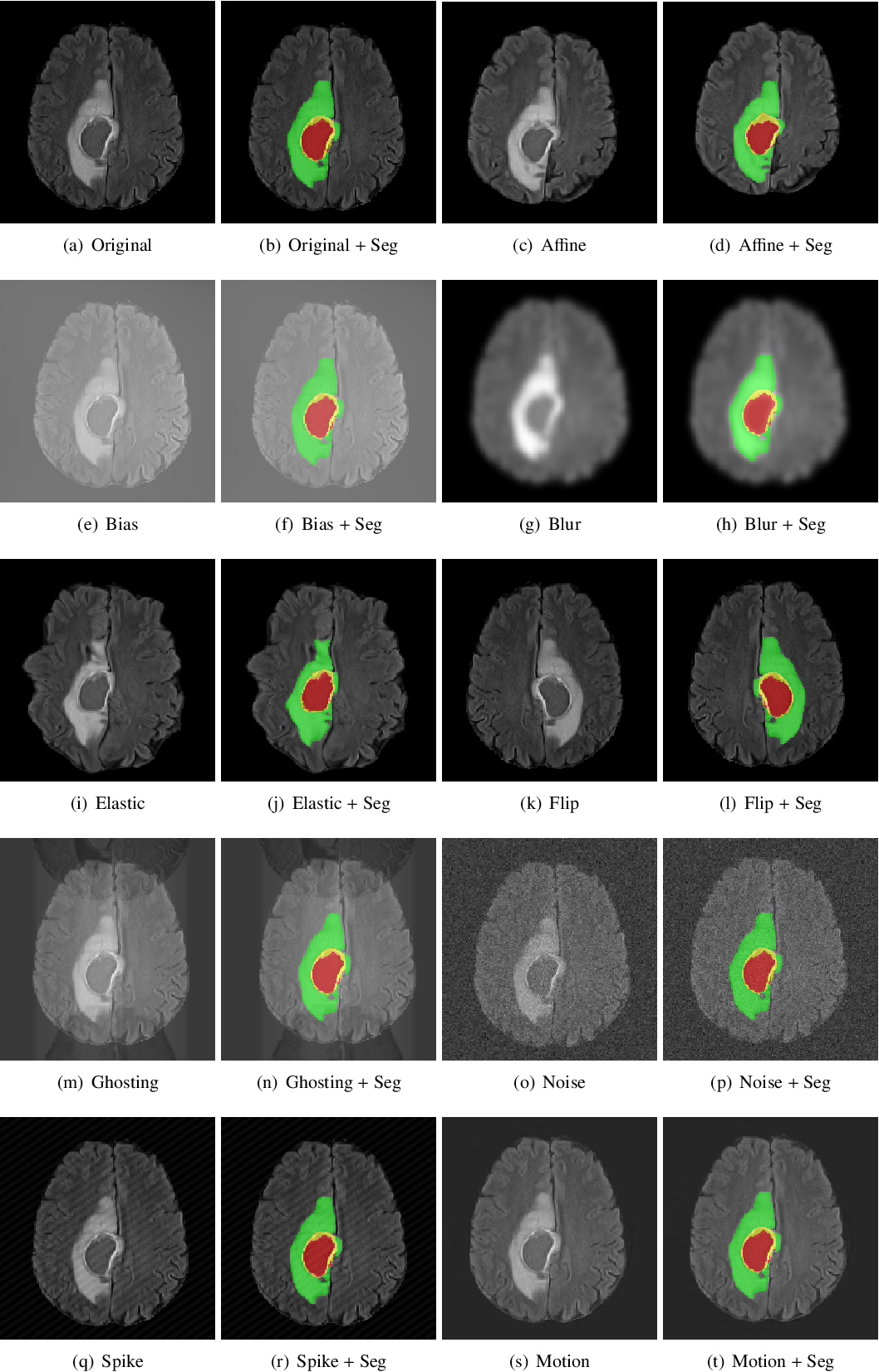 Figure 3 for GaNDLF: A Generally Nuanced Deep Learning Framework for Scalable End-to-End Clinical Workflows in Medical Imaging