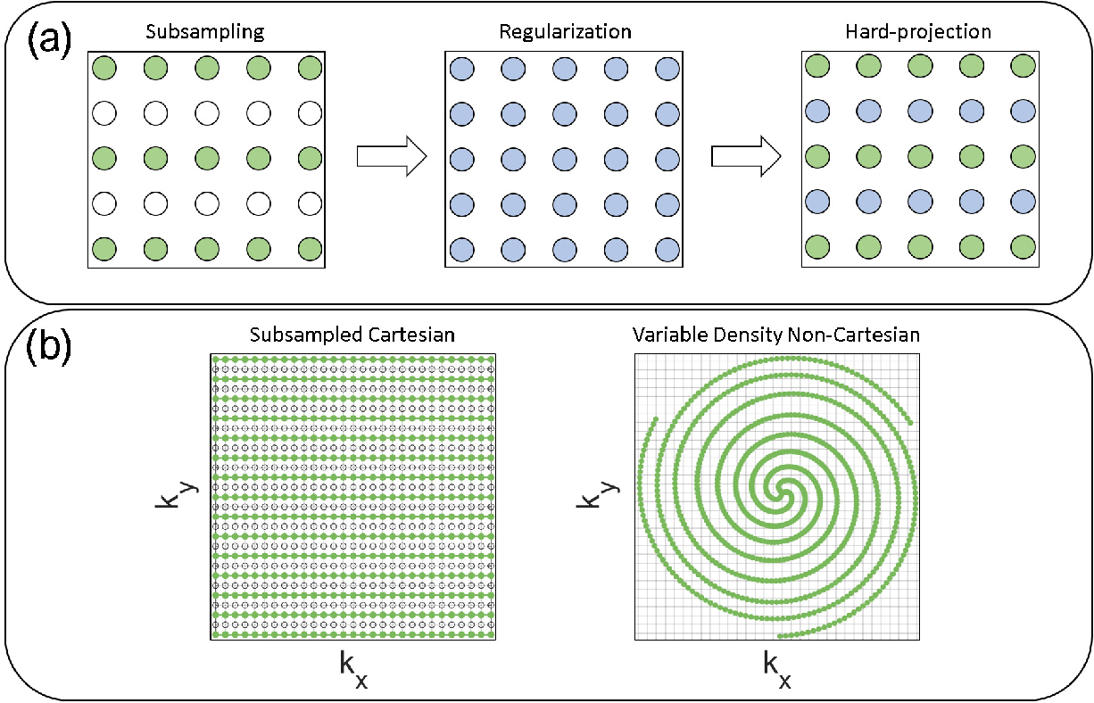 Figure 1 for Reconstruction of Undersampled 3D Non-Cartesian Image-Based Navigators for Coronary MRA Using an Unrolled Deep Learning Model