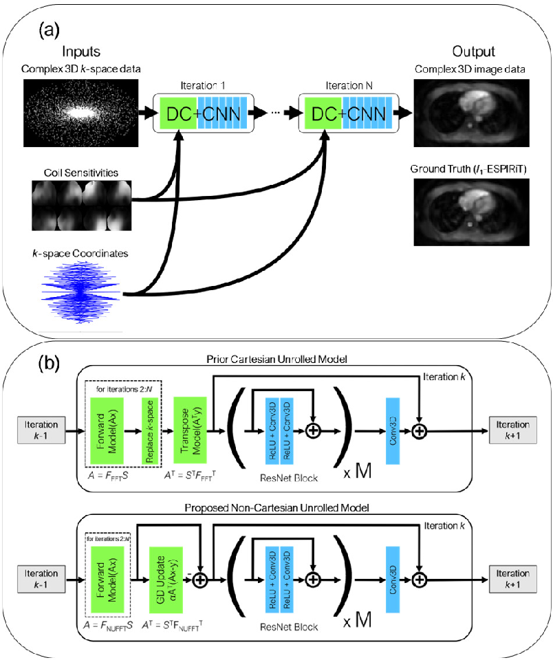 Figure 3 for Reconstruction of Undersampled 3D Non-Cartesian Image-Based Navigators for Coronary MRA Using an Unrolled Deep Learning Model