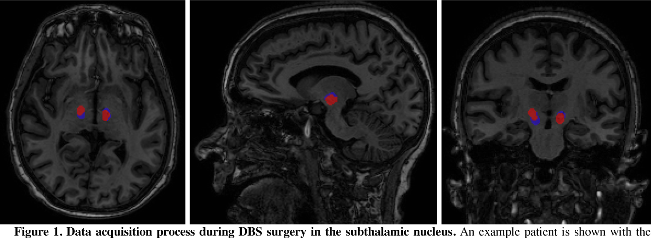Figure 1 for Towards Machine Learning Prediction of Deep Brain Stimulation (DBS) Intra-operative Efficacy Maps