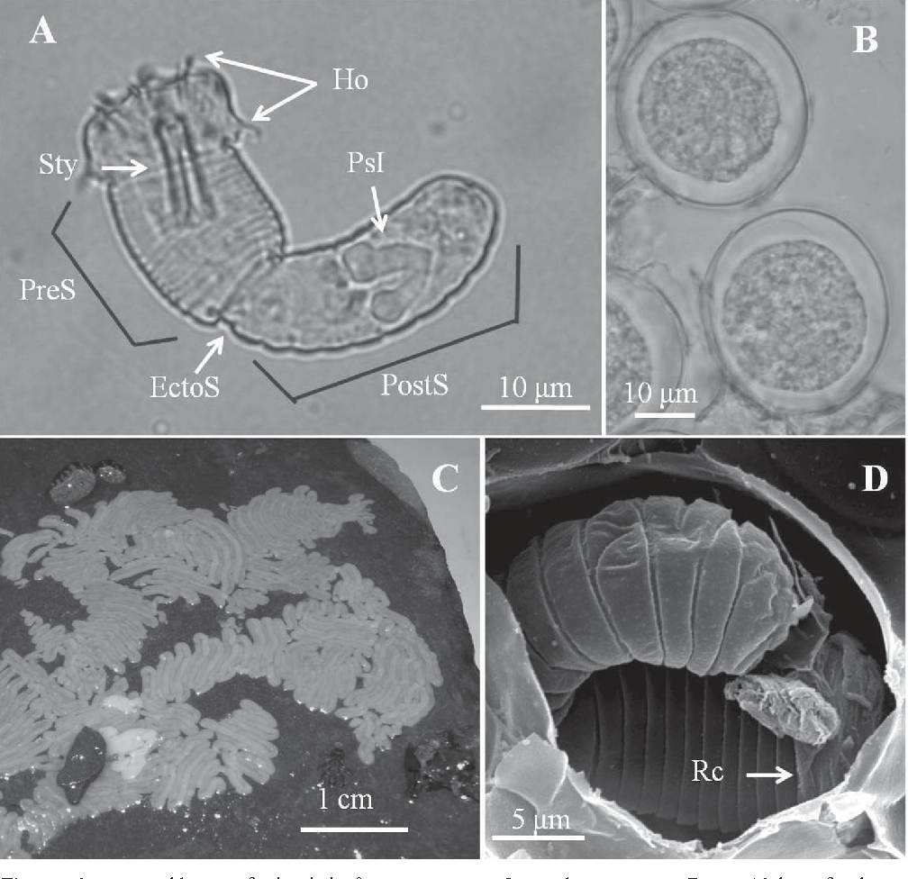Figure 4 from A new horsehair worm, Chordodes formosanus sp  n