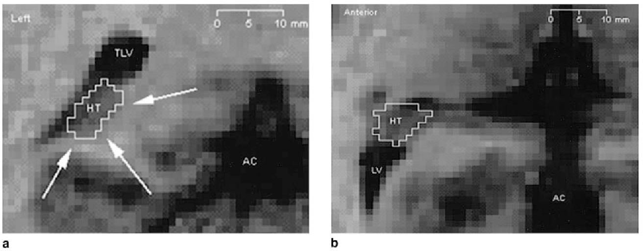 Volumetry of hippocampus and amygdala with high-resolution MRI and ...
