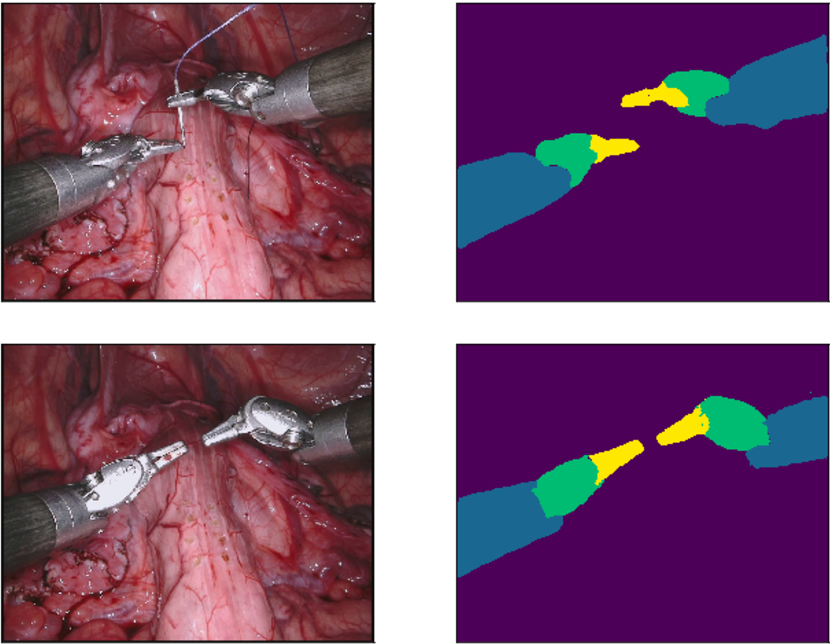 Figure 1 for Searching for Efficient Architecture for Instrument Segmentation in Robotic Surgery