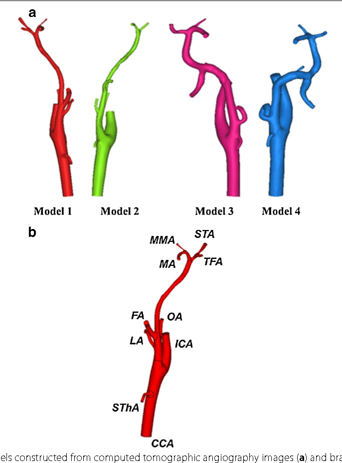 Investigation Of Blood Flow In The External Carotid Artery And Its