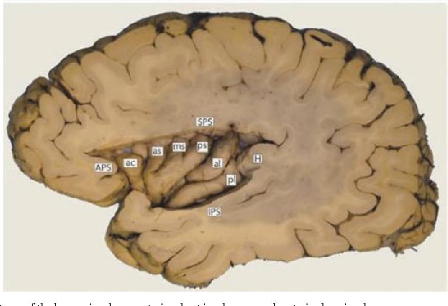 Figure 1 from Understanding disgust. - Semantic Scholar
