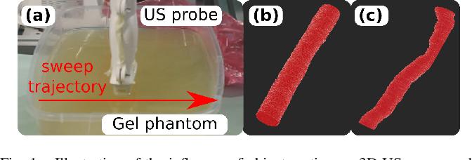 Figure 1 for Motion-Aware Robotic 3D Ultrasound