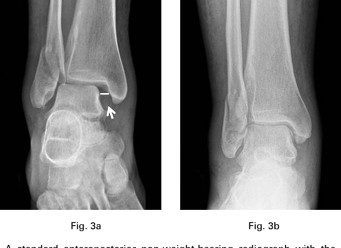 When is a simple fracture of the lateral malleolus not so simple ...