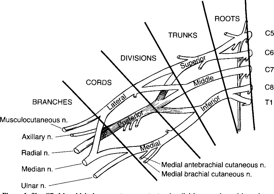 Figure 1 from Brachial plexus anesthesia: an analysis of options ...