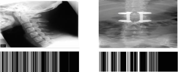 Figure 3 for Radon-Gabor Barcodes for Medical Image Retrieval