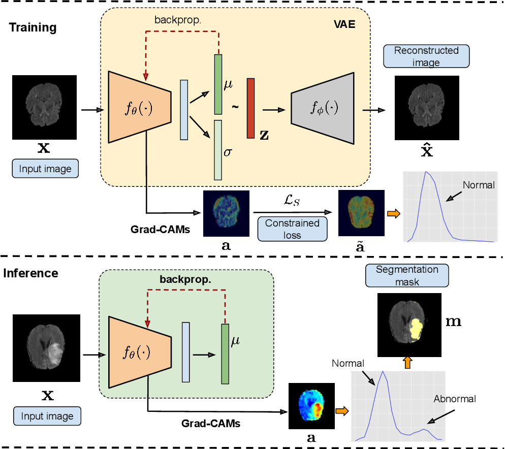 Figure 1 for Looking at the whole picture: constrained unsupervised anomaly segmentation