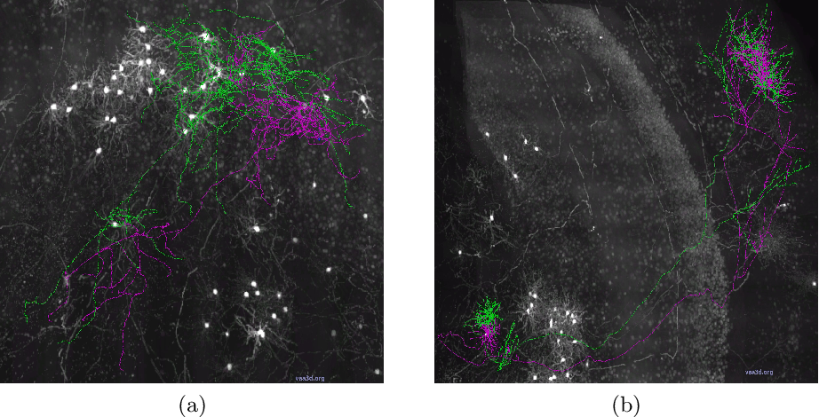 Figure 3 for Quality Control of Neuron Reconstruction Based on Deep Learning