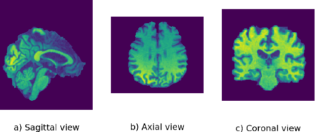 Figure 2 for An Explainable 3D Residual Self-Attention Deep Neural Network FOR Joint Atrophy Localization and Alzheimer's Disease Diagnosis using Structural MRI