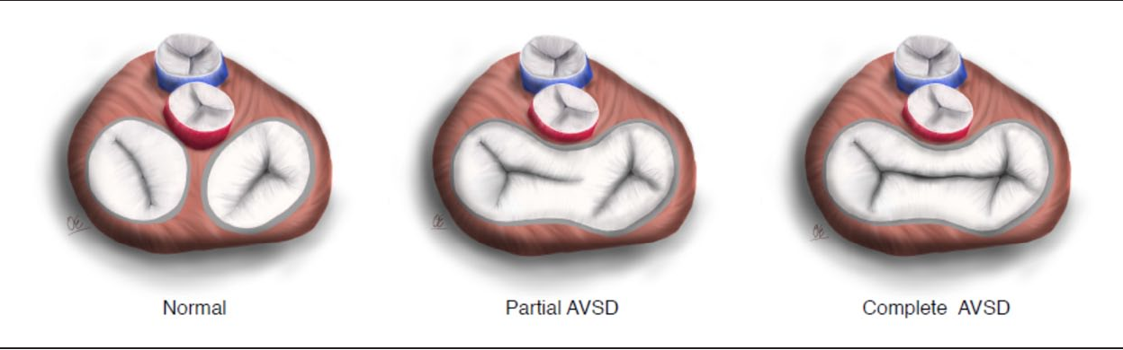 Figure 1. Types of atrioventricular defects.