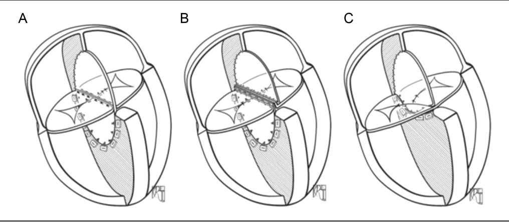 Figure 4. Schematic 3-dimensional reconstruction of the 3 different surgical techniques: (A) Single patch, (B) 2-patch, and (C) modified single patch (reproduced with permission from Backer and Mavroudis24).
