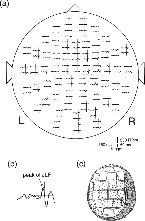 Figure 2 From Chapter 6 6 Emg Eeg Correlation