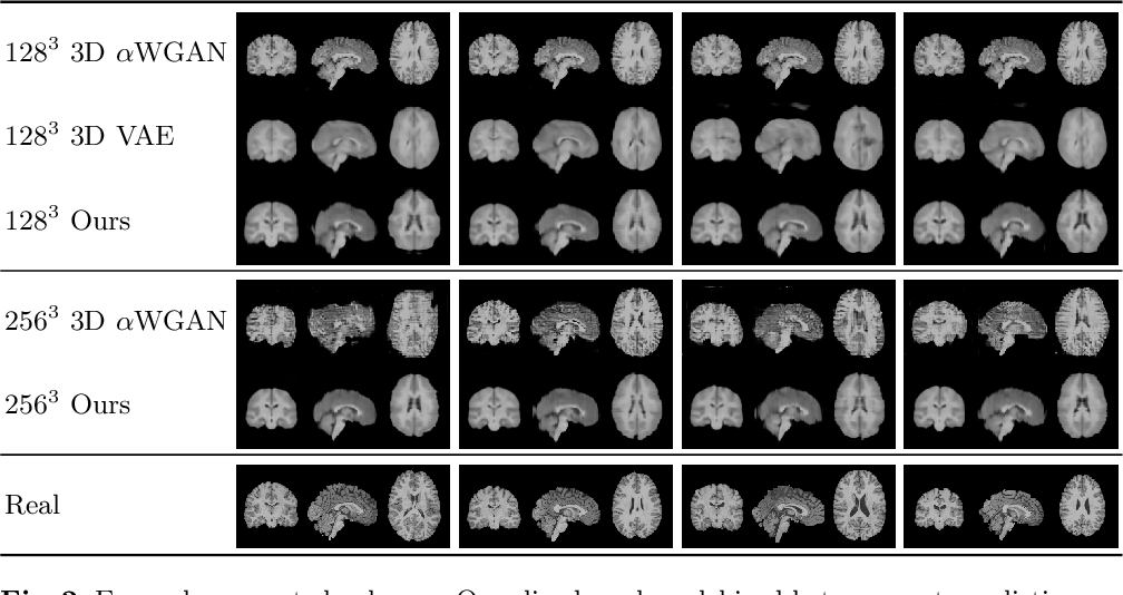 Figure 3 for Modelling the Distribution of 3D Brain MRI using a 2D Slice VAE